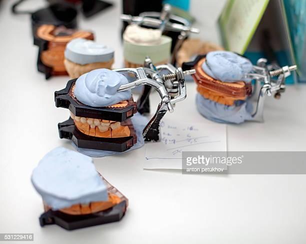 dental technician working with articulator in dental laboratory - crown molding stockfoto's en -beelden