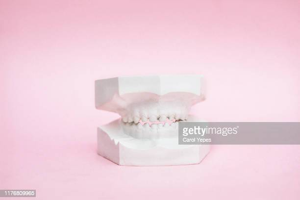 dental teeth model on pink background - gingivitis fotografías e imágenes de stock