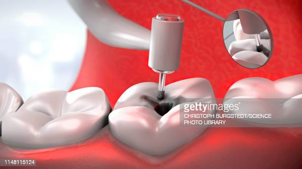 Dental treatment, illustration