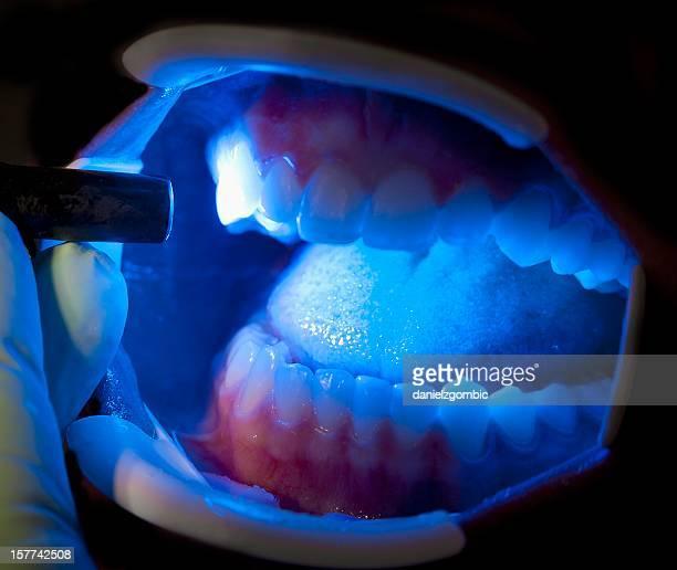 Zahnärztlichen Behandlung
