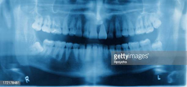 Dental X-ray in blue and purple