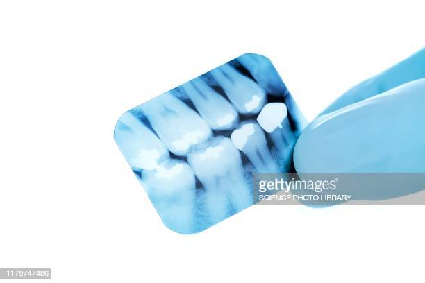 dental x-ray - plaque bacteria stock pictures, royalty-free photos & images