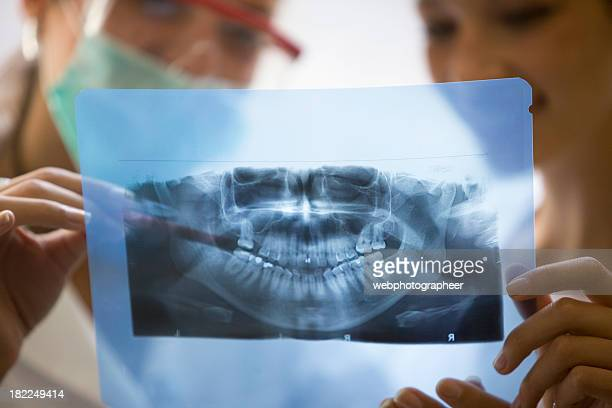 Dental x-ray