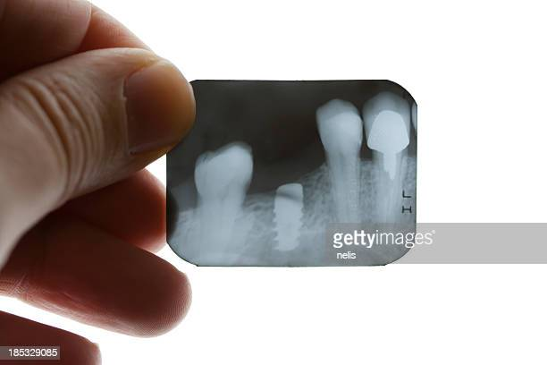 dental x-ray - implant stock photos and pictures
