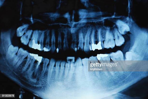 dental x-ray - rotten teeth stock photos and pictures