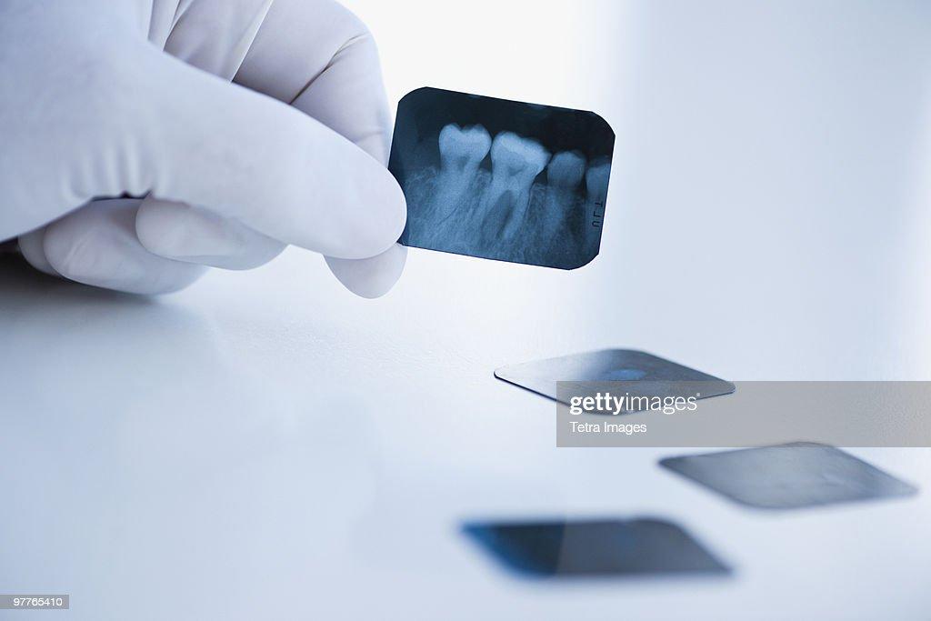 Dental x-ray : Stock Photo