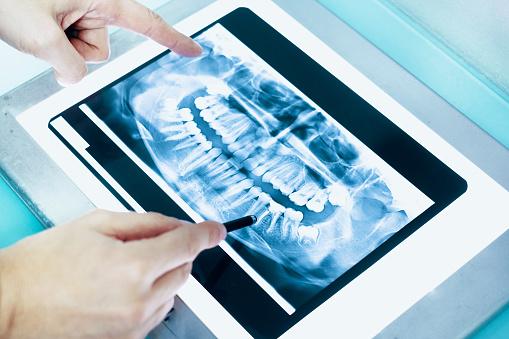 Dentist examining dental x-ray in his clinic lab 944652484