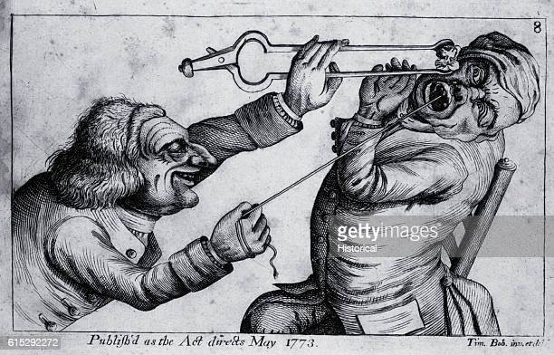 A dentist is extracting a tooth with a string by thrusting a hot coal in the patient's face while the string is attached The patient recoils in...
