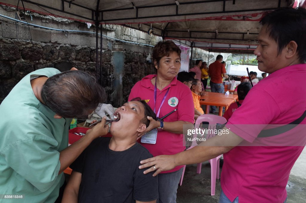 A dentist performs a tooth extraction to a patient during a medical mission at a village in Quezon City, east of Manila, Philippines on Sunday, August 20, 2017.