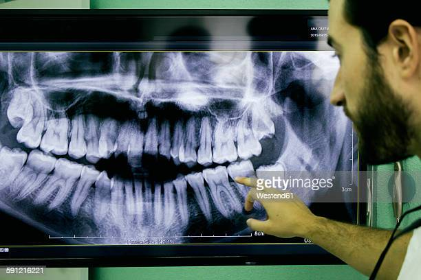 Dentist showing an x-ray