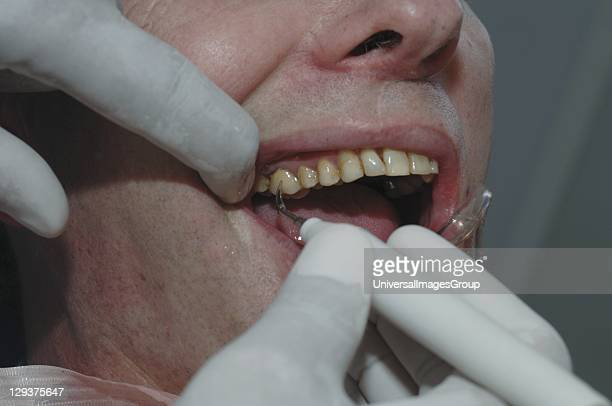 Dentist using dental scraper along with dental mirror to remove plaque from patients teeth