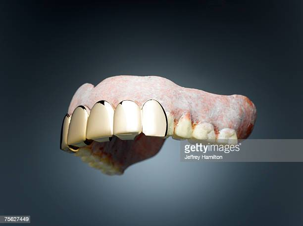 dentures with gold teeth in font - gold tooth stock photos and pictures