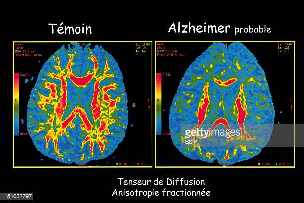 Department Of Morphological And Functional Imaging Led By Professor Fredy At The Pitie Salpetriere Hospital In Paris France Diffusion Tensor Mri On...