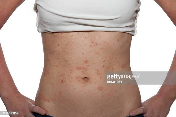 dermatitis - eczema stock pictures, royalty-free photos & images