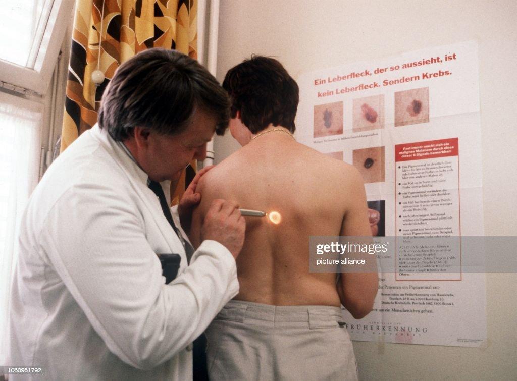 Preventive checkup - Dermal cancer : Fotografía de noticias