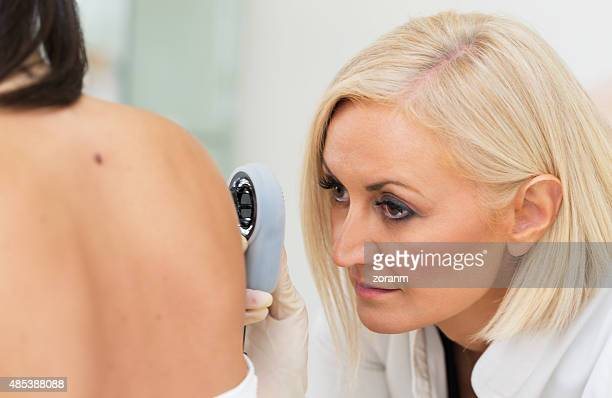 dermatologist examining melanoma - human arm stock pictures, royalty-free photos & images