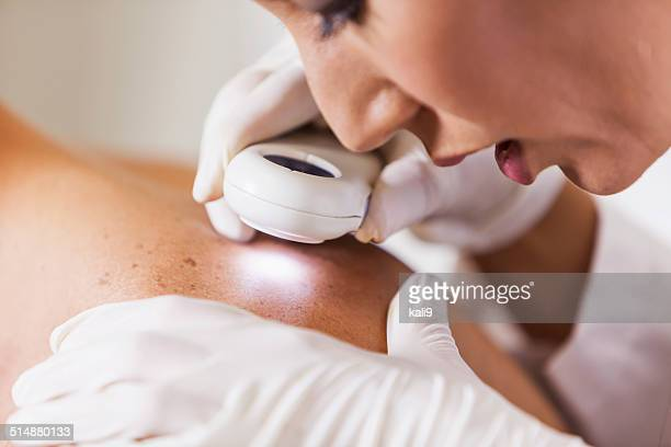dermatologist examining patient for signs of skin cancer - human skin stock pictures, royalty-free photos & images