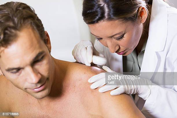 dermatologist examining patient's skin for signs of cancer - human skin stock pictures, royalty-free photos & images