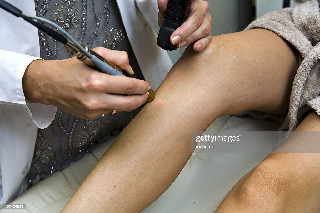 Dermatólogo realiza láser Depilación : Foto de stock