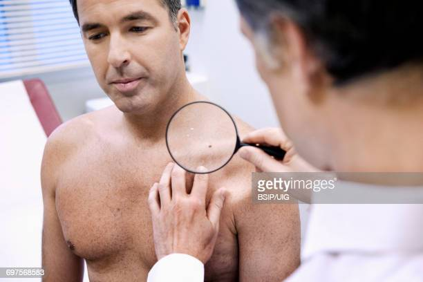dermatology consultation man - melanom stock-fotos und bilder