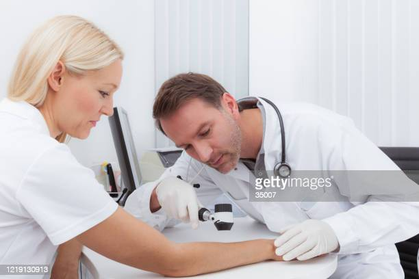 dermoscopy prevention - melanoma imagens e fotografias de stock