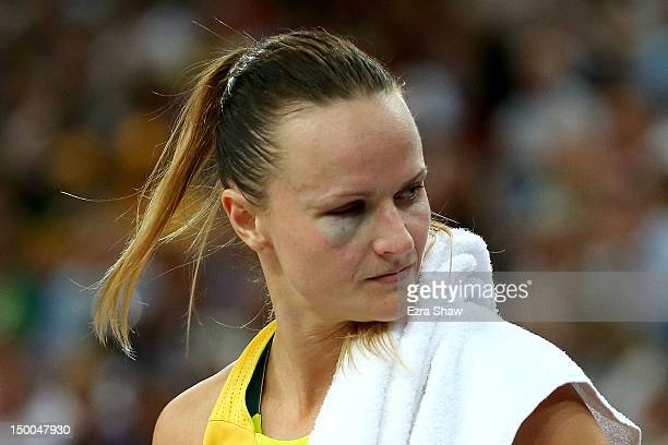 A detail of a blackeye on the right eye of Jennifer Screen of Australia against the United States during the Women's Basketball semifinal on Day 13...