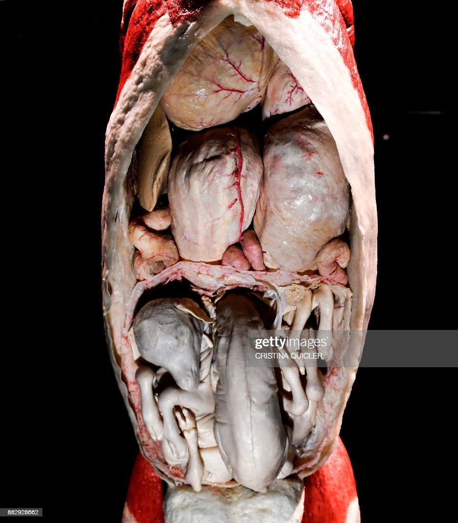 A Detail Of A Full Plastinated Body Of A Pregnant Goat With Three