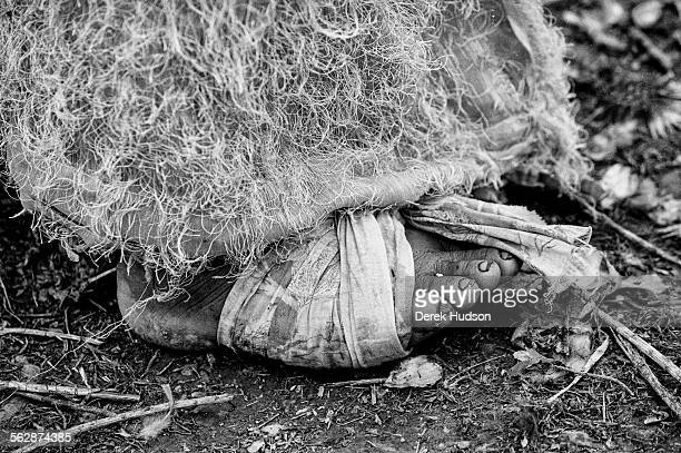 Detail of a woman's foot bound in a rag to cover a wound sustained as she crossed the Zagros mountain range to escape imminent persecution at the...