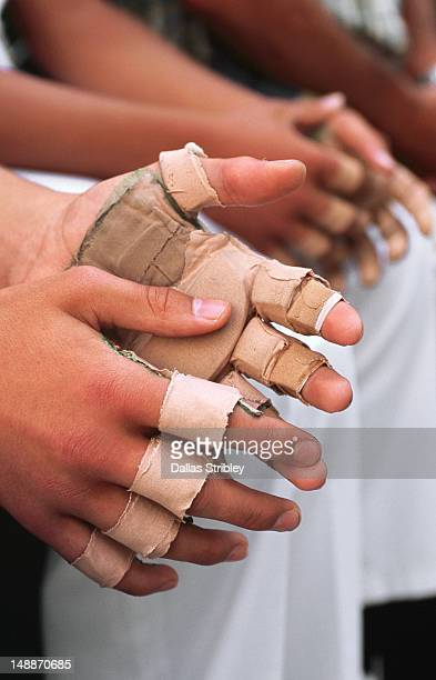 Detail of taped hands of young pelota players in Plaza de la Trinidad.