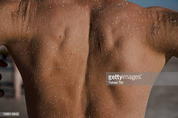 Detail of the back of a man with dried salt on his skin