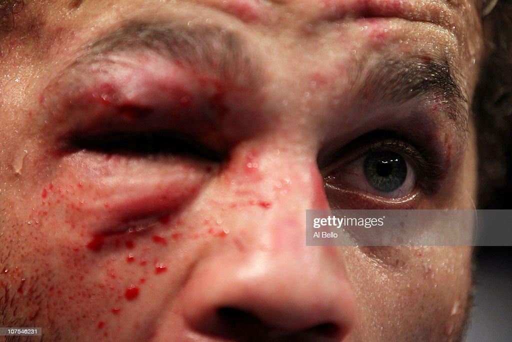 UFC 124: St-Pierre vs. Koscheck