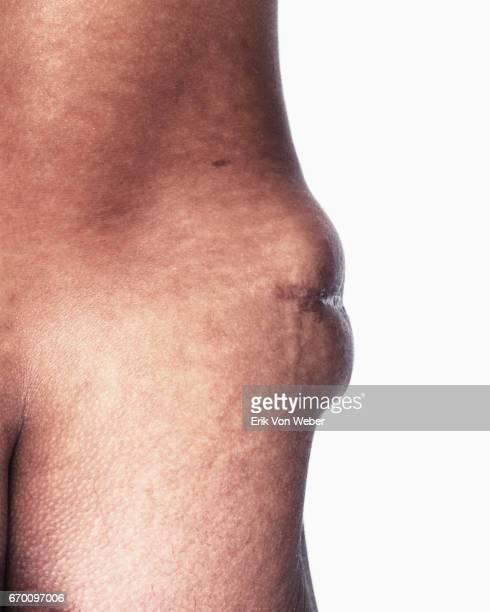 Detail of US veteran's Iraq war scar