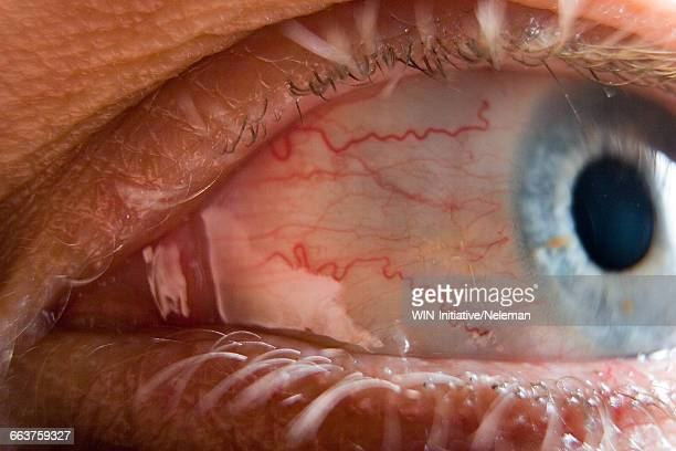 Details of a human eye