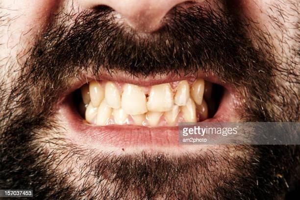 Detalle de dientes sucias