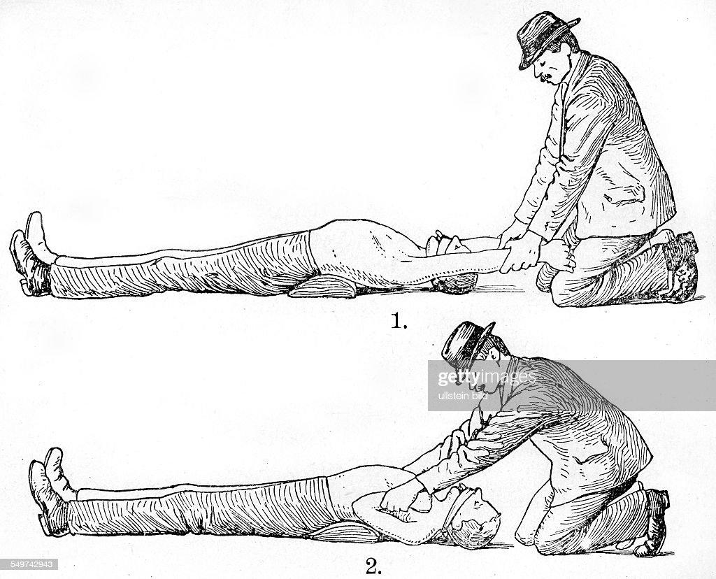 GER, Deutschland,  Alter Holzschnitt um 1880, Kuenstliche Beatmung : News Photo