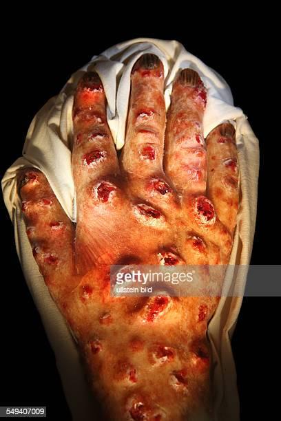 eine Wachsmodellhand zum Thema Lepra in der Schauwand der Medizinhistorischen Sammlung der RuhrUniversitaet Bochum A