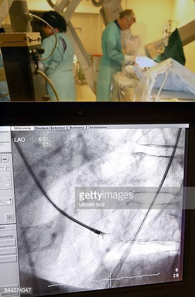Deutschland Medizin Kardiologie Herzkrankheiten Monitor zeigt die Untersuchung eines Herzkranzgefaesses an der Universitaetsklinik in Jena...