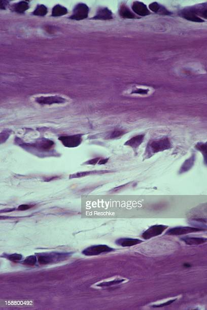 Developing Spongy Bone, Osteoblasts and Osteocytes