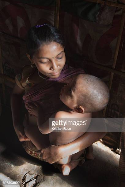 Dhaka Bangladesh Sumi 12 years old at home Sumi lives in the slums by the railway tracks in Tejgaon When she was 18 months old a train hit her and...