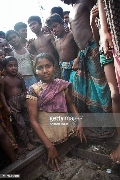 Dhaka Bangladesh Sumi 12 years old Sumi lives in the slums by the railway tracks in Tejgaon When she was 18 months old a train hit her and cut off...
