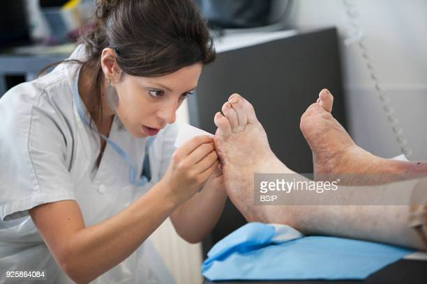 Diabetic feet consultations Savoie France specialized team devoted to treatment and aftercare for diabetic patients foot lesions The nurse measures...