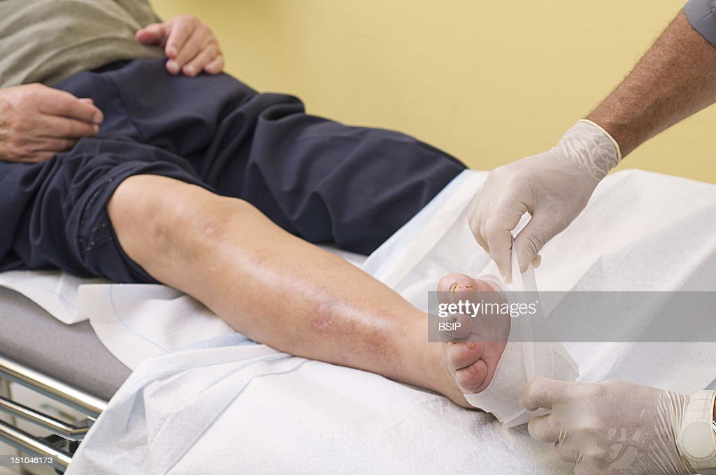 Diabetic Foot Care : News Photo