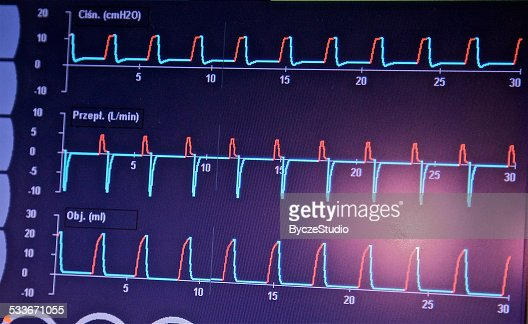 Ekg Ecg Diagnosis Recording Heart Rhythm Electrical Activity