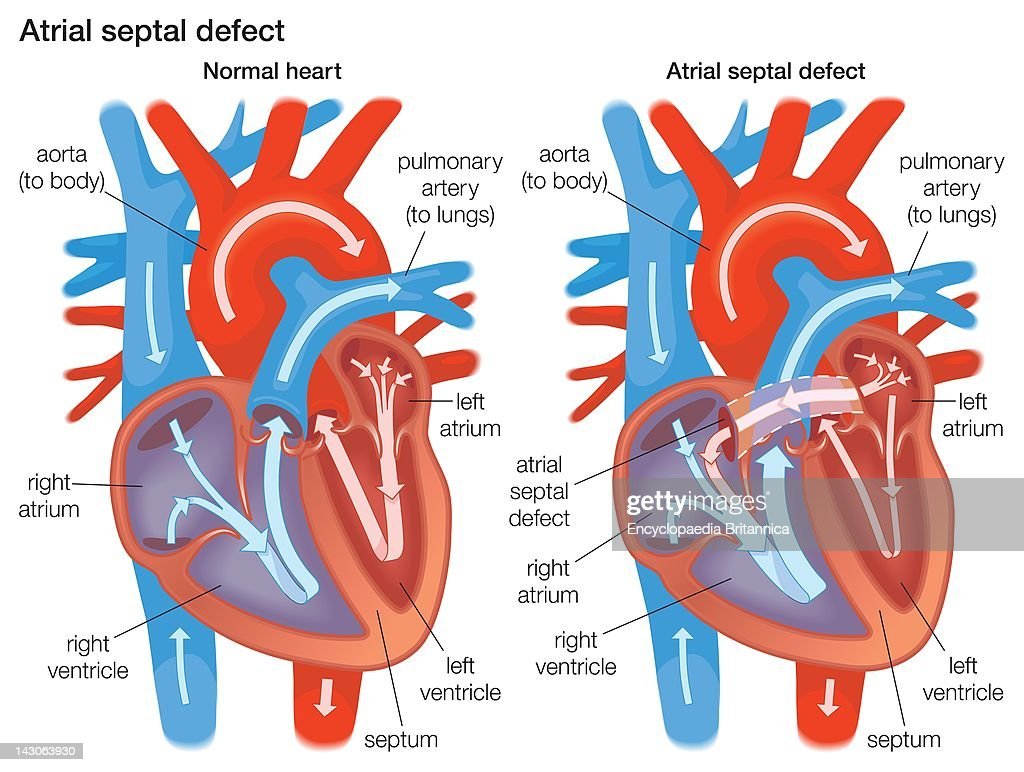Diagram Of Normal Heart Auto Electrical Wiring Diagram