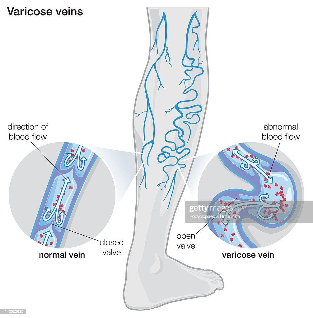 Varicose Vein Diagram - Complete Wiring Diagrams •