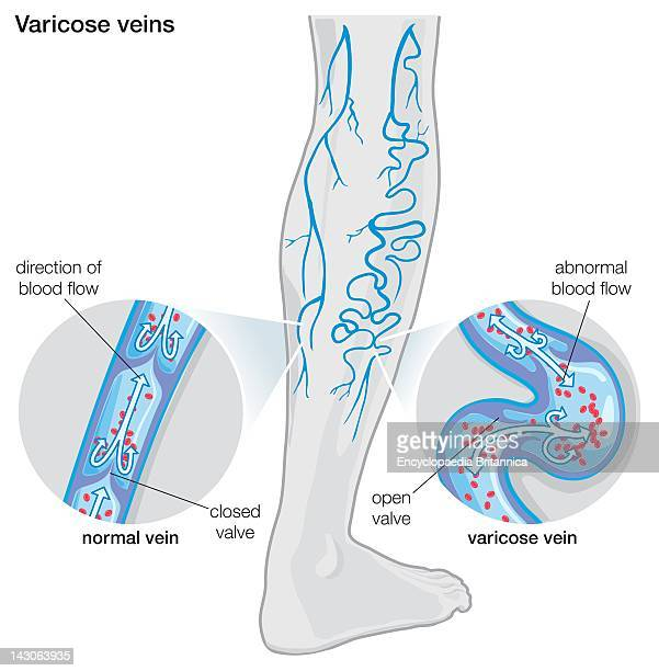 Diagram Illustrating Varicose Veins