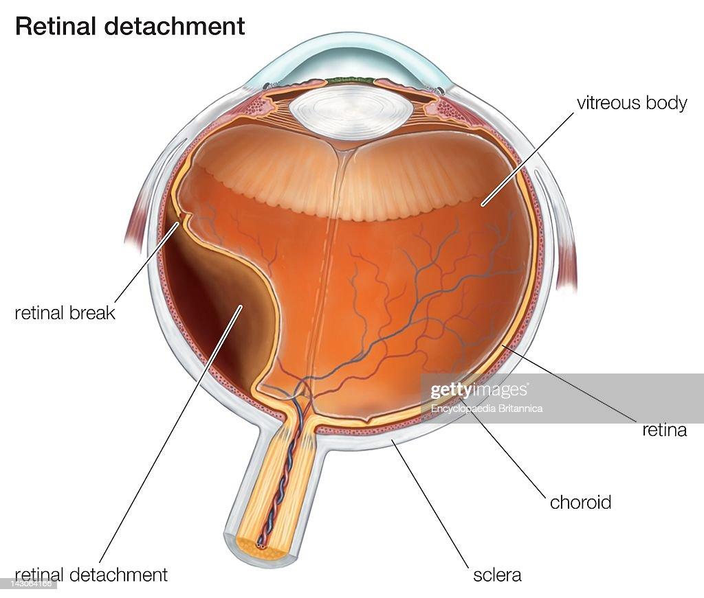 Diagram Of A Retinal Detachment News Photo Getty Images Shield Volcano