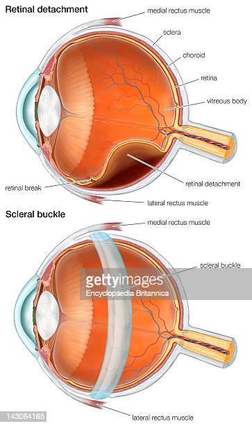 Diagram Of A Scleral Buckle Used To Repair A Retinal Detachment