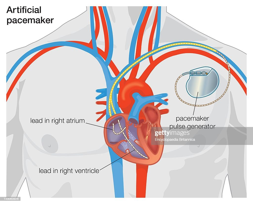 diagram of an artificial pacemaker picture id143063926?s=612x612 pacemaker stock photos and pictures getty images