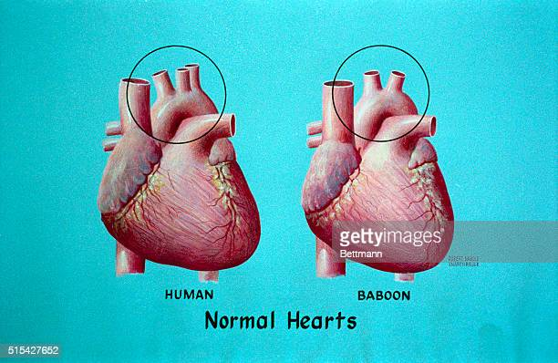 Diagram of Baby Fae's abnormal heart and a healthy human heart shown with a Baboon heart